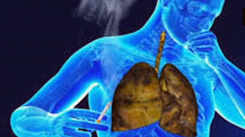 Can testosterone replacement therapy reduce progression of lung disease?