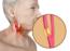 Successful Cardiac intervention helps patient walk again