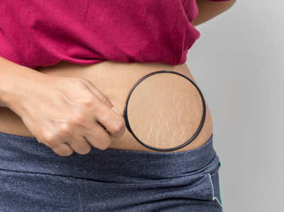 How to get rid of pregnancy stretch marks