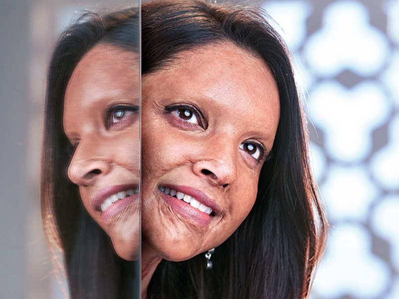 Deepika's next 'Chhapaak' is a story of undying human spirit