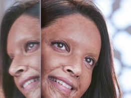 Deepika Padukone's first look as acid attack survivor in 'Chhapaak' is out