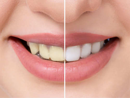 How To Whiten Your Teeth The Times Of India