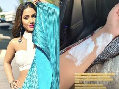 Hina Khan burns her hand while shooting