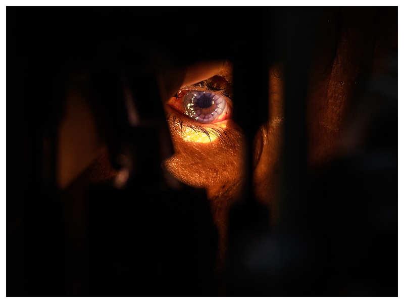 Of 15 million blind people, 75 % have preventable blindness