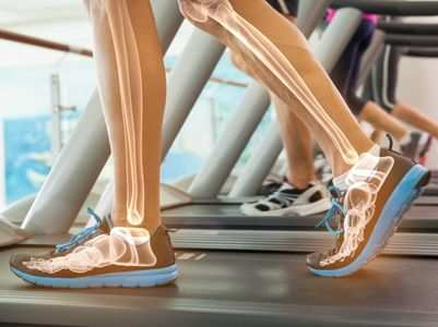 7 everyday habits that are hurting your bones