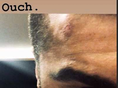 'Panipat': Arjun Kapoor injures his forehead