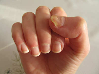 What causes yellow nails and how to cure this problem