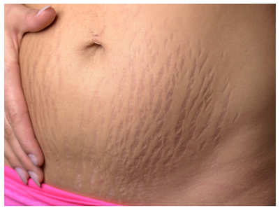 Understanding pregnancy stretch marks