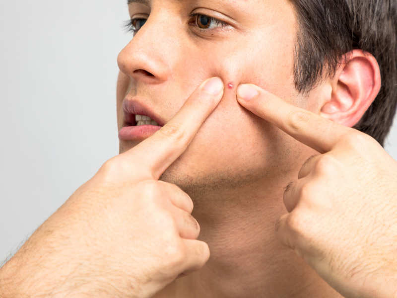 Treat Pimples 3 Ways To Get Rid Of A Pimple Fast How To Get Rid Of A Pimple Overnight