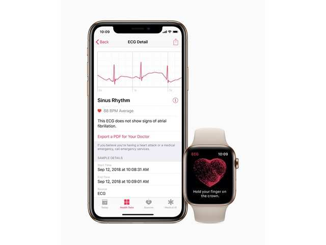 Apple rolls out ECG support on Apple Watch in India
