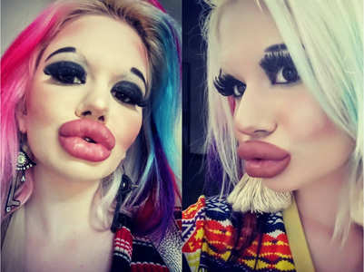 Woman triples the size of the lips and spends a fortune!