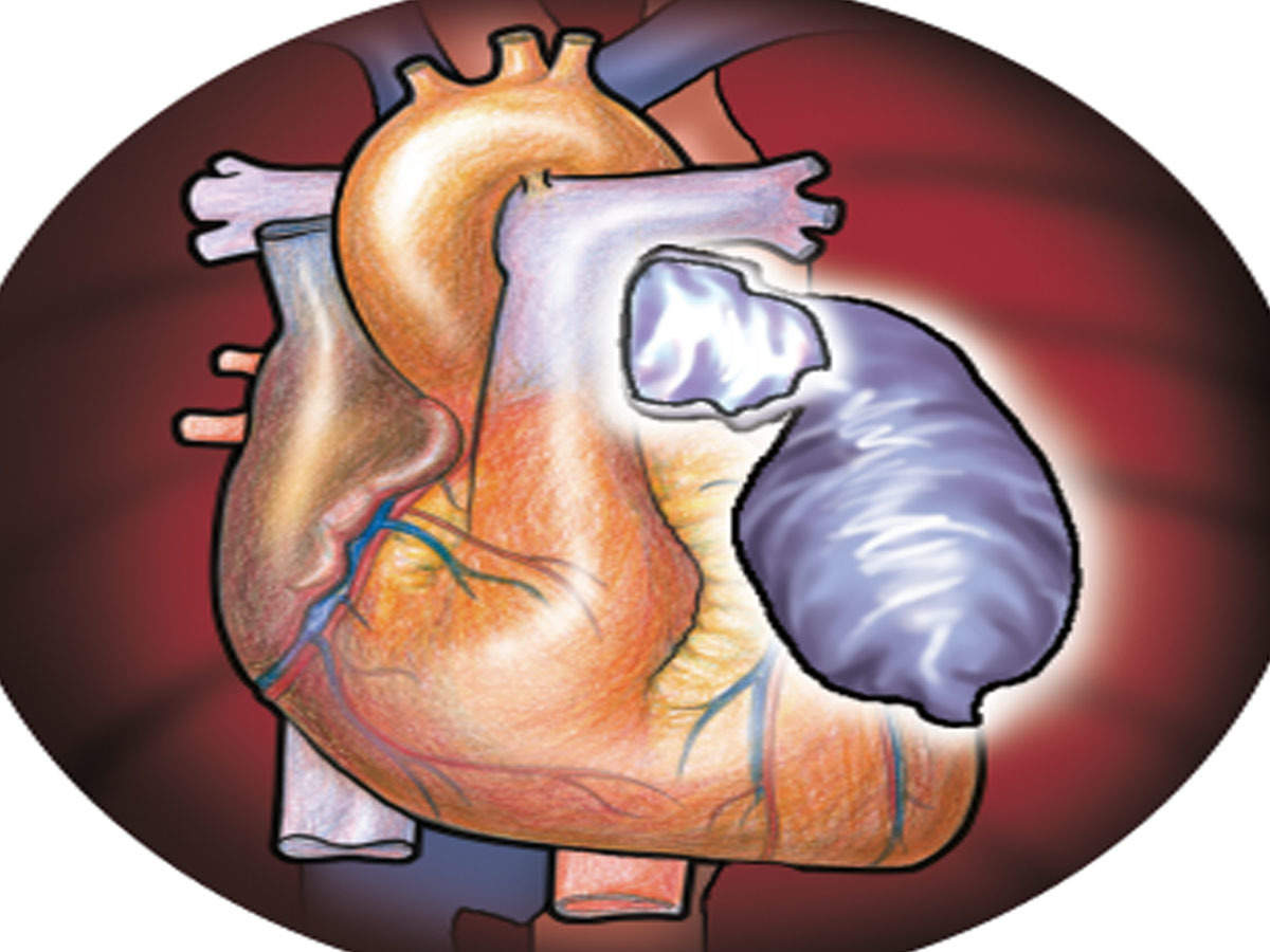 Get A Ct Angio On Turning 25 Advises Top Cardiac Surgeon As Heart Attack Age Drops Mumbai News Times Of India
