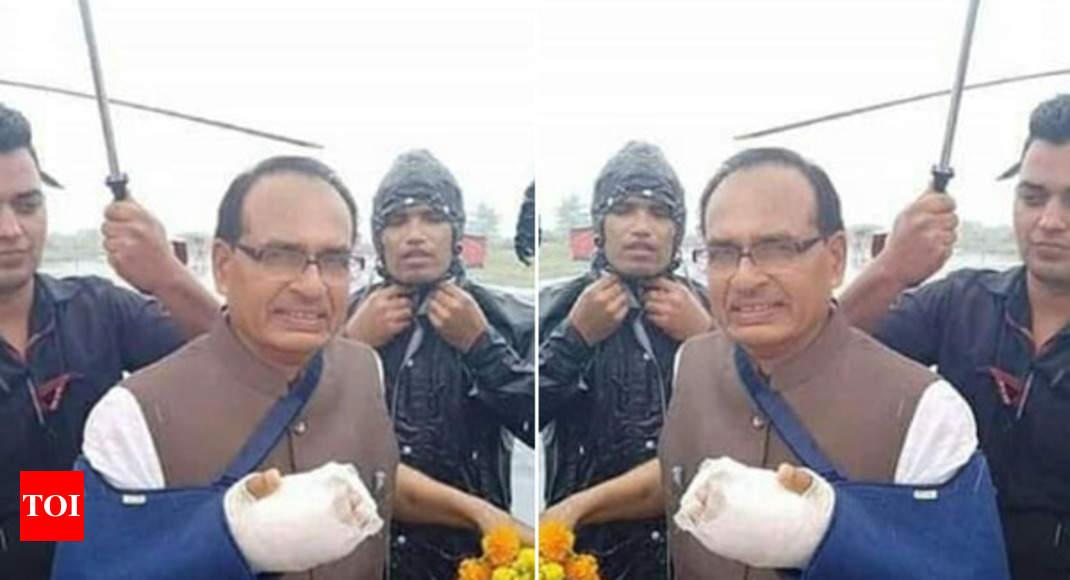 Fact check: Did Shivraj fake injury on his hand?