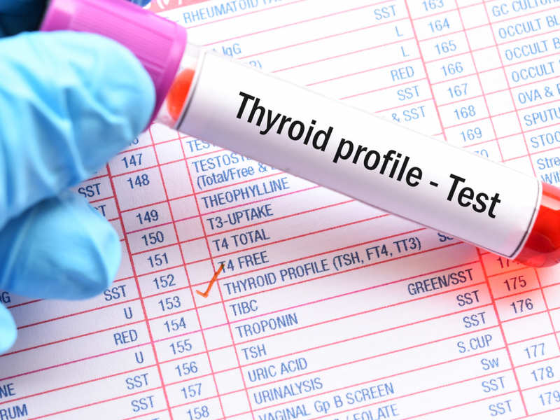 Thyroid Function Test Know What T3 T4 And Tsh Mean Times Of India