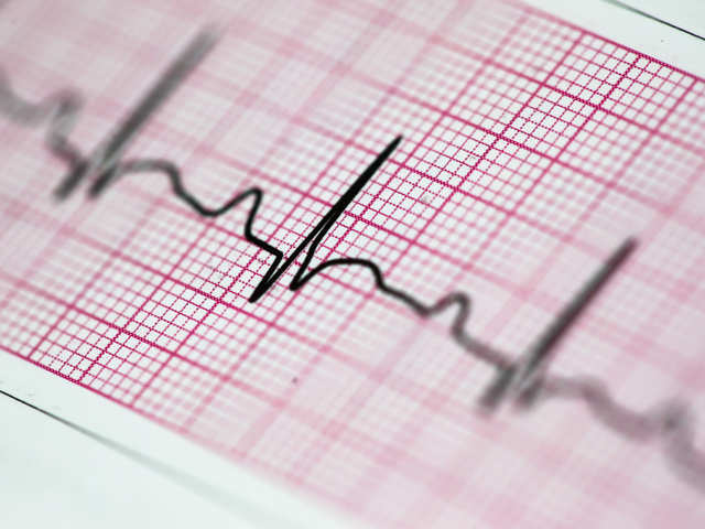 IIT-Hyderabad develops device to monitor ECG data in real time