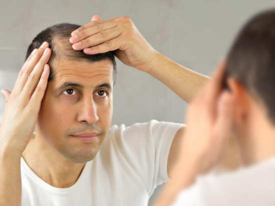 Stressful lifestyle is one major reason for men facing hair loss issues