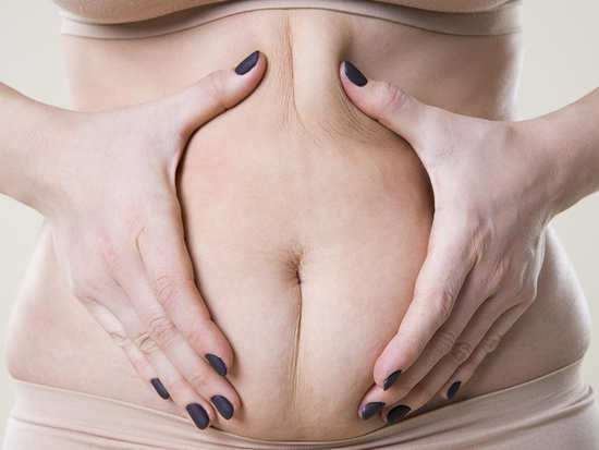 Debunking myths that people believe about cellulite