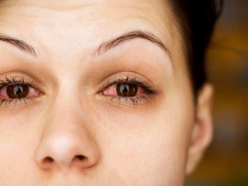 3 types of eye infections and tips to prevent them during monsoon