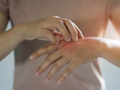 Skin rashes can be a symptom of coronavirus. Here is what you need to know