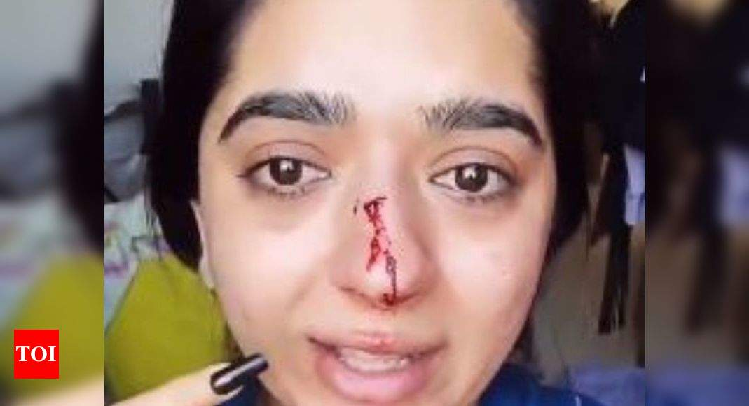 Bangalore Zomato case: Techie cancels food order, delivery boy punches her  | Bengaluru News - Times of India