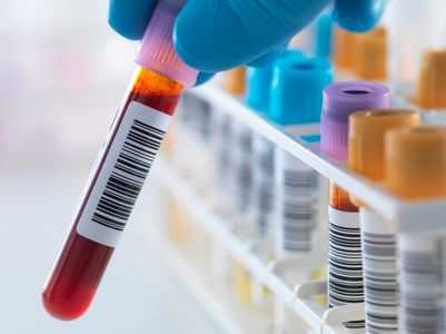 Study: Blood types do not affect COVID-19 risks