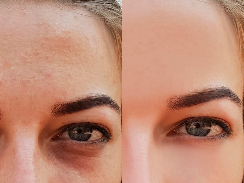 4 super tips to fix puffy eyes