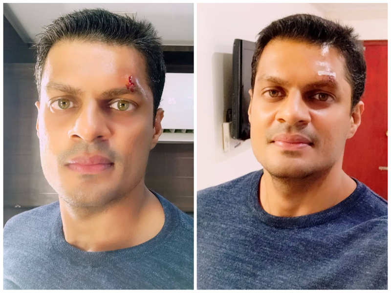Sudev Nair gets injured during a stunt