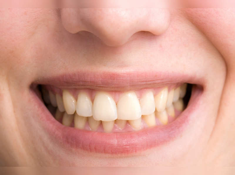 3 Grandma approved home remedies to whiten yellow teeth