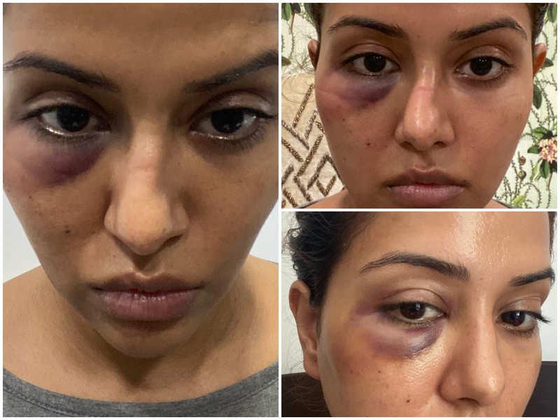 Raiza Wilson's dermatologist clarifies what exactly happened