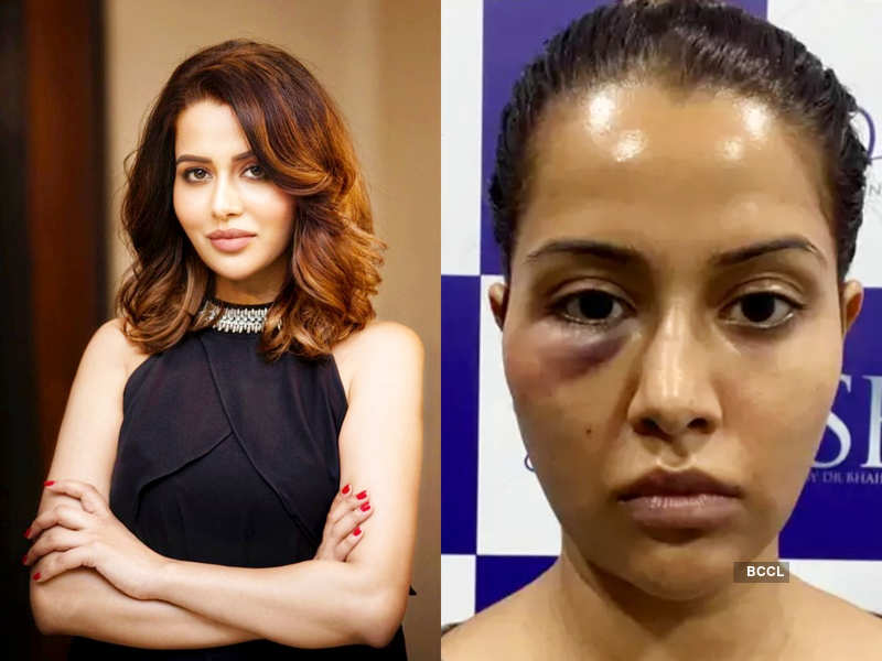 Bigg Boss Tamil 1 fame Raiza Wilson shares draft of her legal notice to the dermatologist seeking Rs. 1 crore as compensation; actress Harathi comes in support of her (Photo - Instagram)