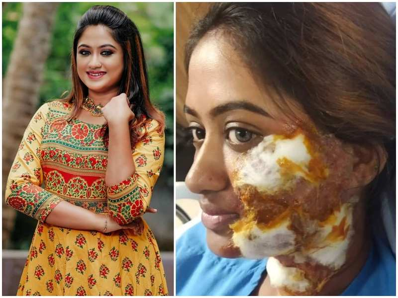 Swathy Nithyanand narrates the struggle of playing an acid attack victim on-screen; lauds the courageous real-life survivors