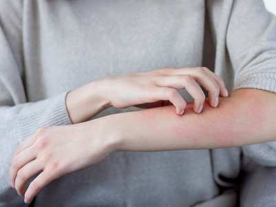 5 signs of skin infection in COVID-19