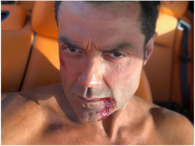 Bobby Deol celebrates 3 Years of Race3