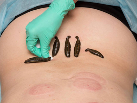 Leech Therapy: All you need to know about this ayurvedic pain management technique