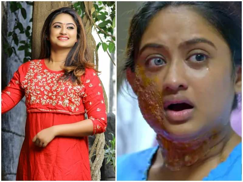 Swathy Nithyanand on playing an acid attack victim in 'Namam Japikkunna Veedu': Many showed sympathy on me; love and support is what victims deserve