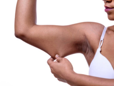 How to take care of sagging skin after losing weight