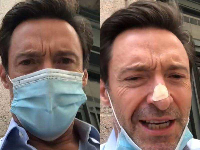 Hugh Jackman gets skin biopsy on his nose