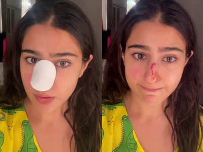 Watch: Sara Ali Khan injures her nose