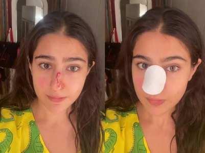 Sara shares a video of her 'injured' nose