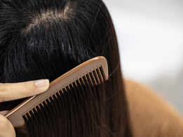 Hair Care: DIY remedies for oily scalp