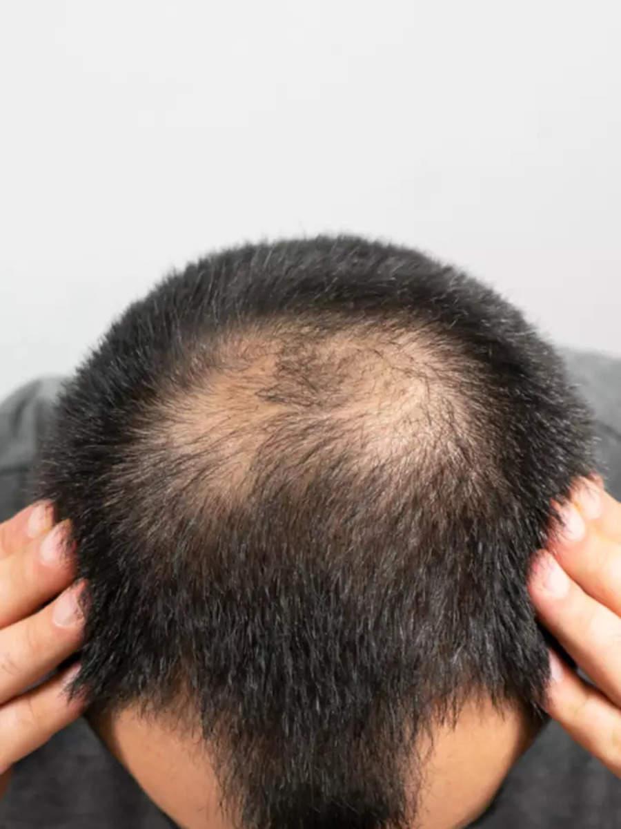 Natural remedies to reverse balding