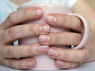 Common signs and symptoms of calcium deficiency